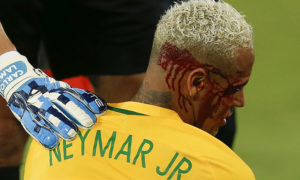 Neymar sangrando